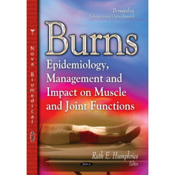 Burns: Epidemiology, Management & Impact on Muscle & Joint Functions
