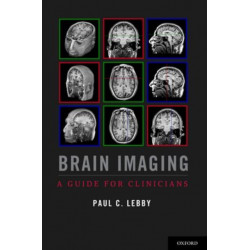 Brain Imaging: A Guide for Clinicians