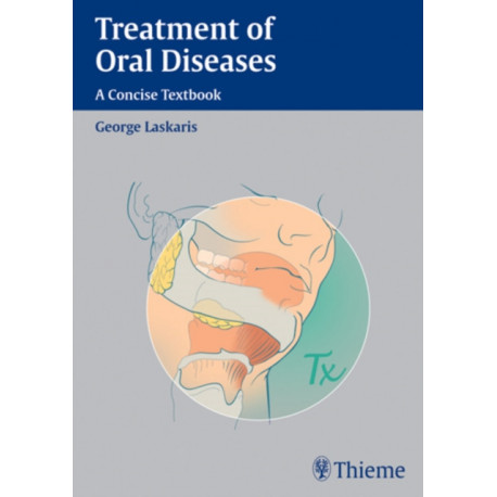 Treatment of Oral Diseases: A Concise Textbook