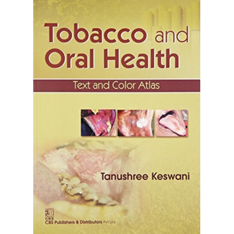 Tobacco and Oral Health: Text and Color Atlas