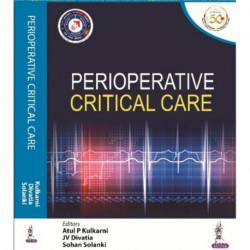 Perioperative Critical Care