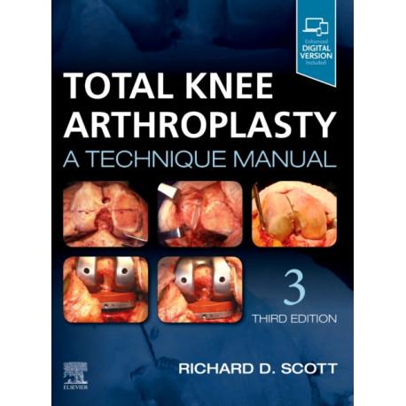 Total Knee Arthroplasty: A Technique Manual