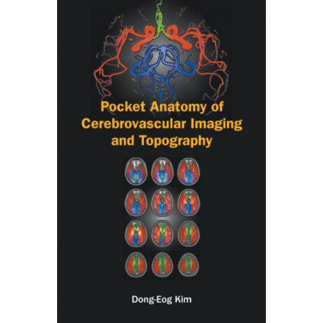 Pocket Anatomy Of Cerebrovascular Imaging And Topography