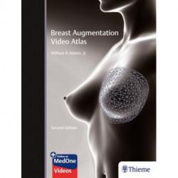 Breast Augmentation Video Atlas