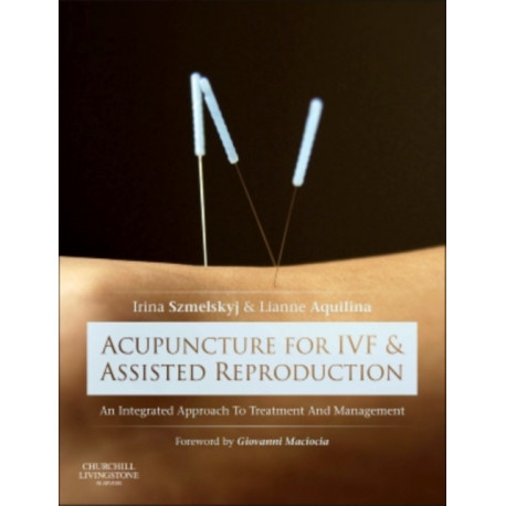 Acupuncture for IVF and Assisted Reproduction: An integrated approach to treatment and management