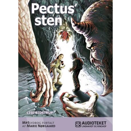 Pectus' sten 1