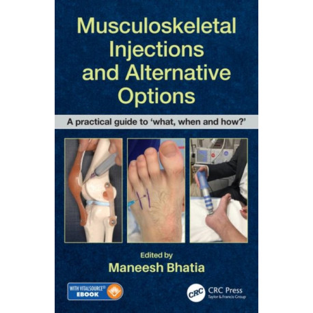 Musculoskeletal Injections and Alternative Options: A practical guide to 'what, when and how?'