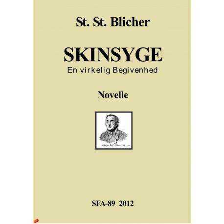 Skinsyge